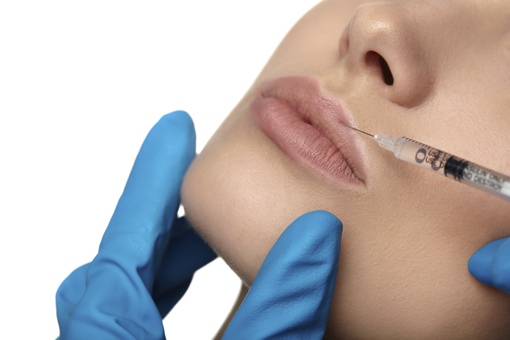 woman receiving filler injection in lip area