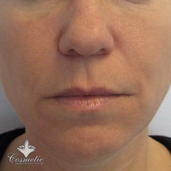 Cosmetic Dermatology CenterBotox®, Xeomin®, Dysport