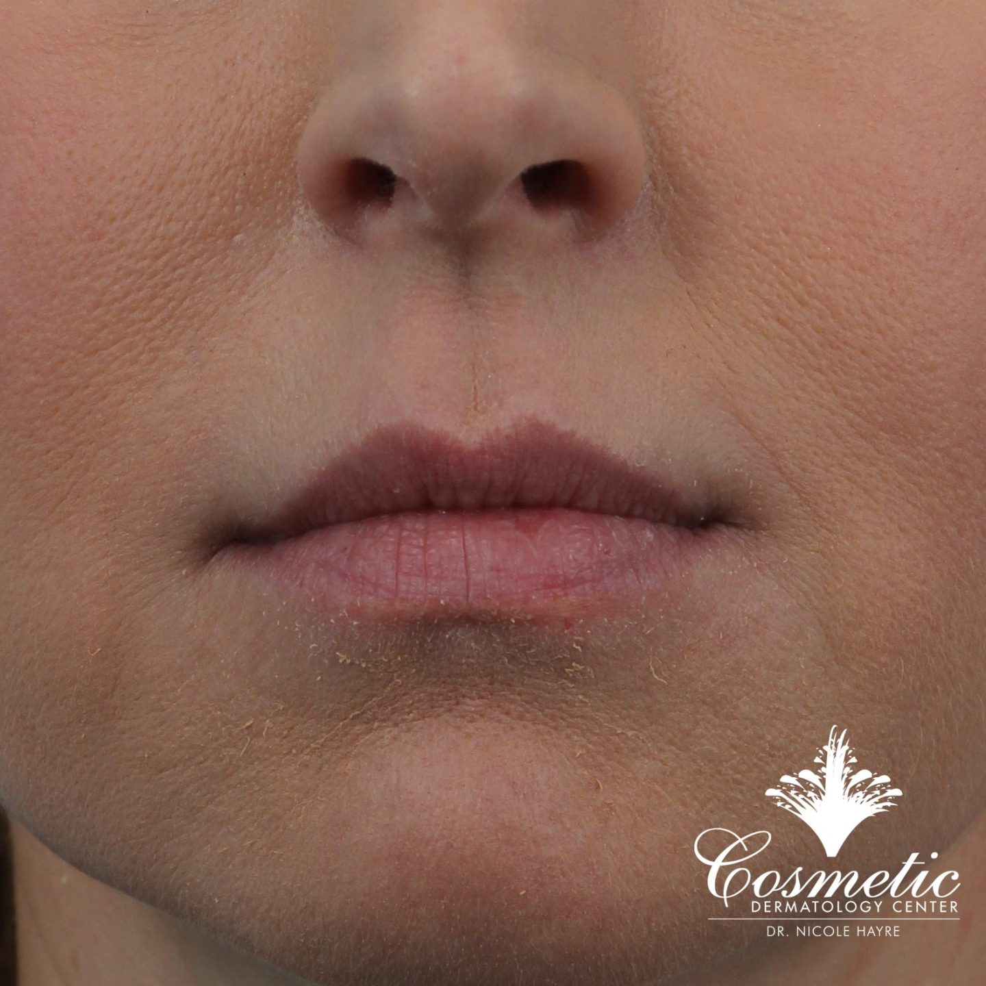 lip fillers falls church