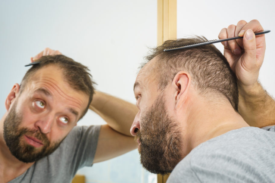 Do Hair Plugs Look Fake