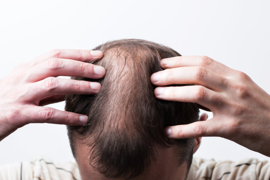 Hair Plugs vs. PRP