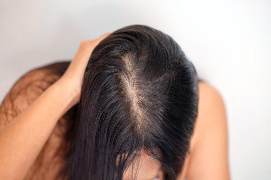 Hair Loss Options