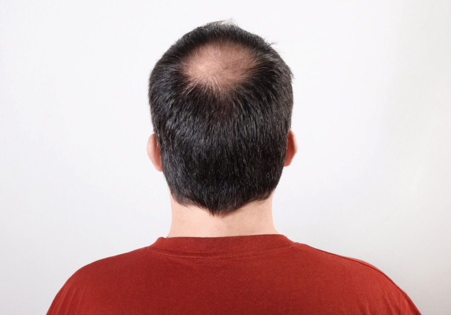 is PRP therapy for hair loss painful