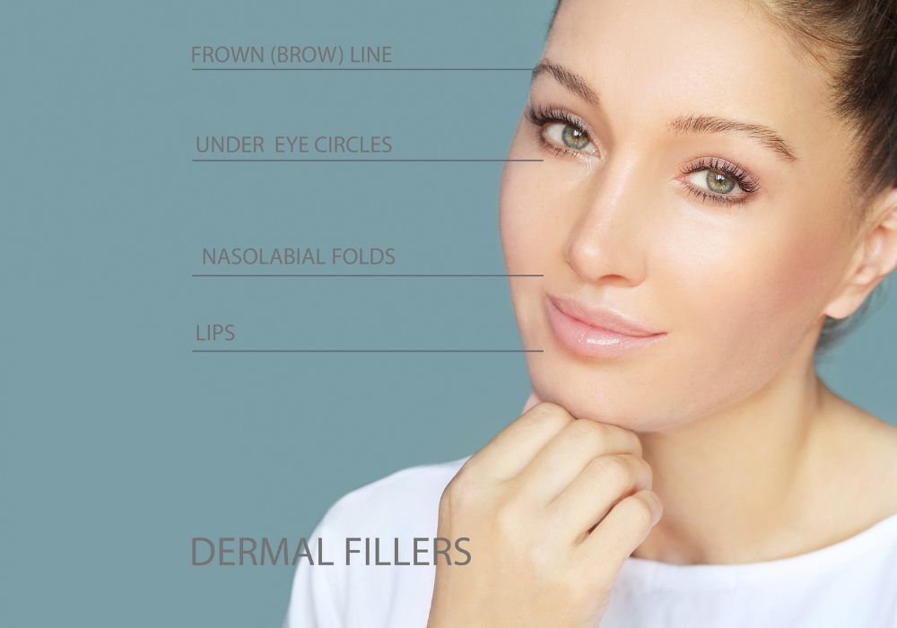 How to Choose the Best Filler
