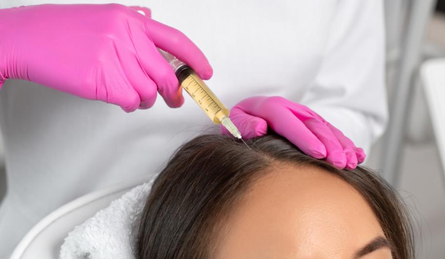 PRP for Hair Loss McLean
